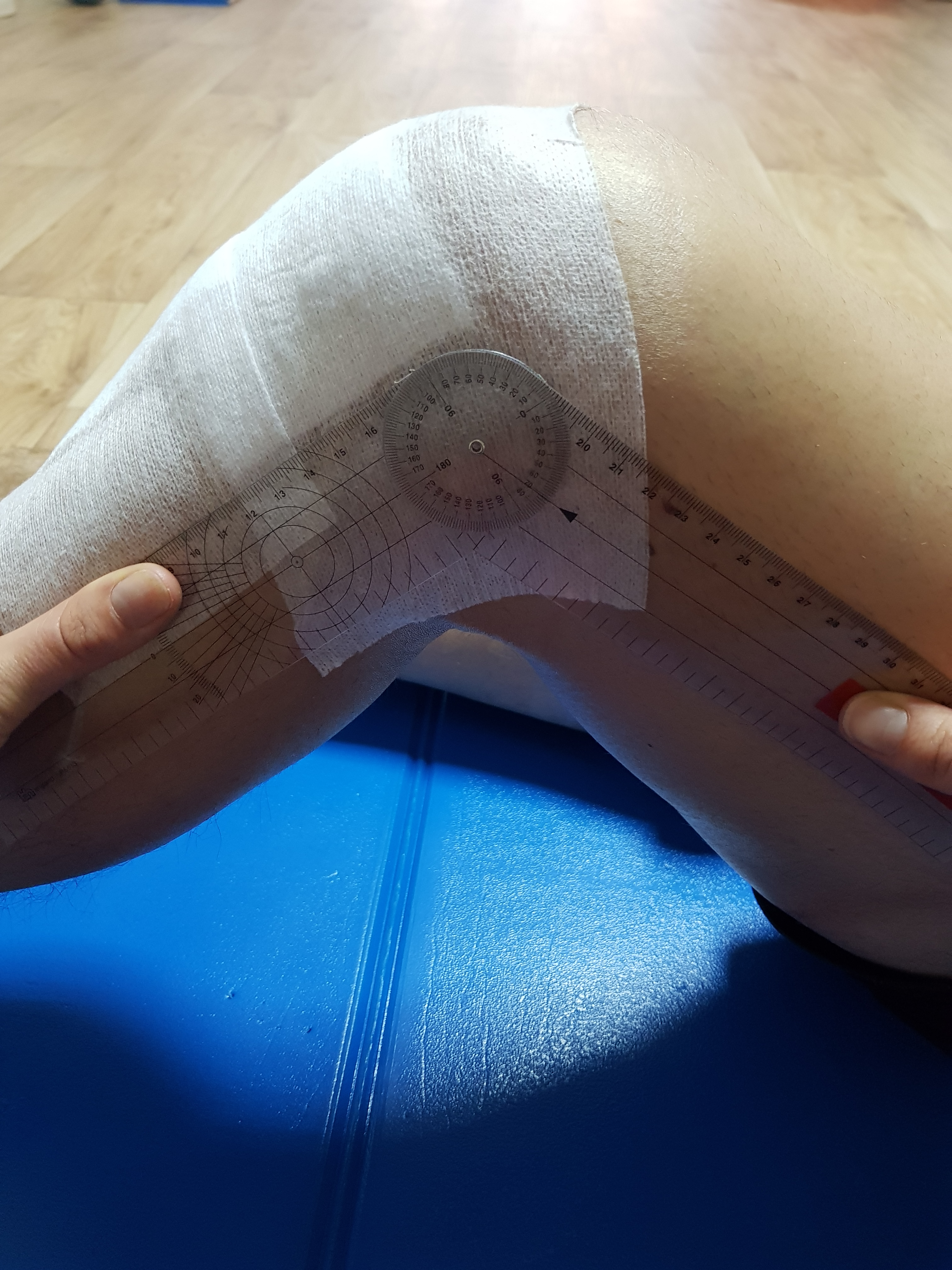 Hematoamele de buzunar prevăd infecția dispozitivului pe termen lung